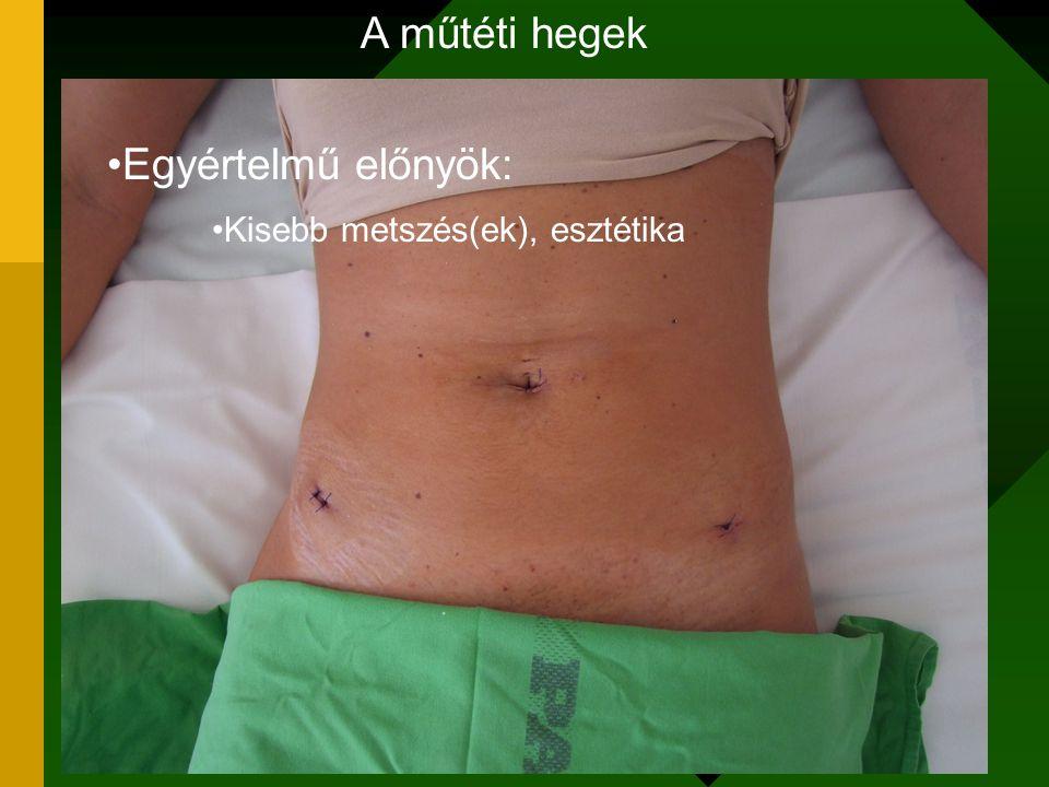 A műtéti hegek Egyértelmű előnyök: Kisebb metszés(ek), esztétika