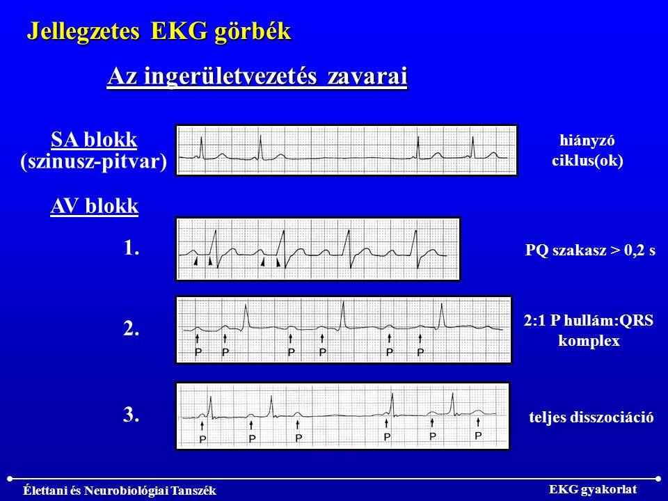Jellegzetes EKG görbék Az ingerületvezetés zavarai
