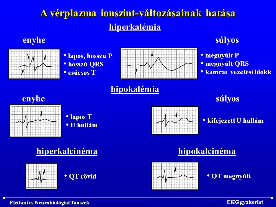 A vérplazma ionszint-változásainak hatása