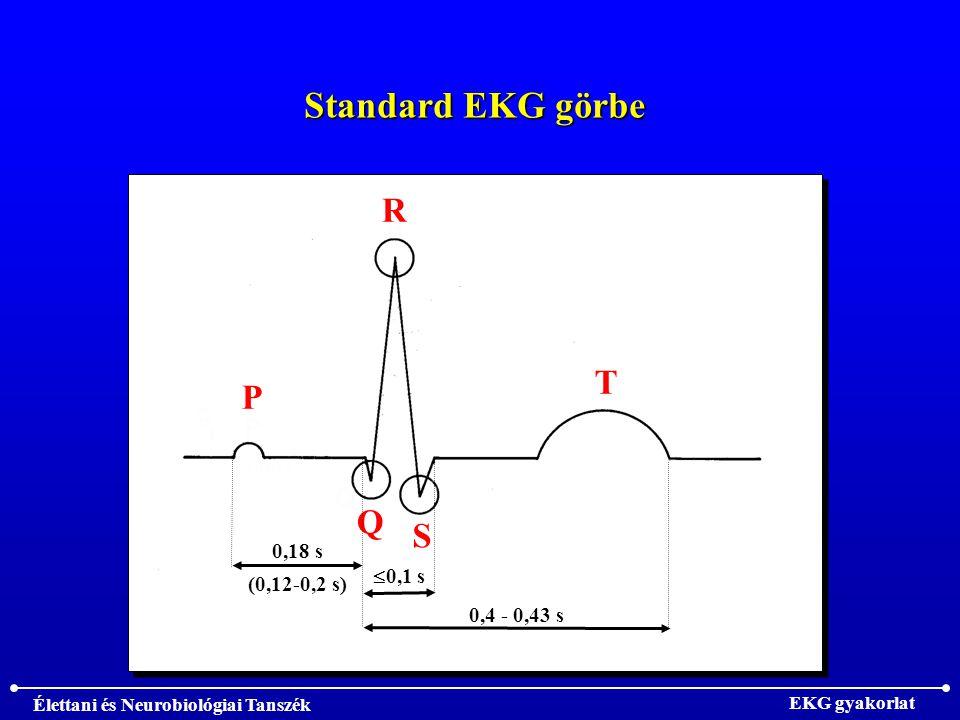Standard EKG görbe P R Q S T 0,1 s 0,4 - 0,43 s 0,18 s (0,12-0,2 s)