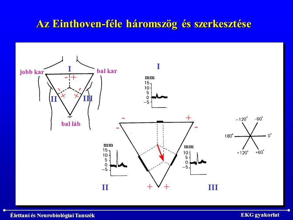 Az Einthoven-féle háromszög és szerkesztése