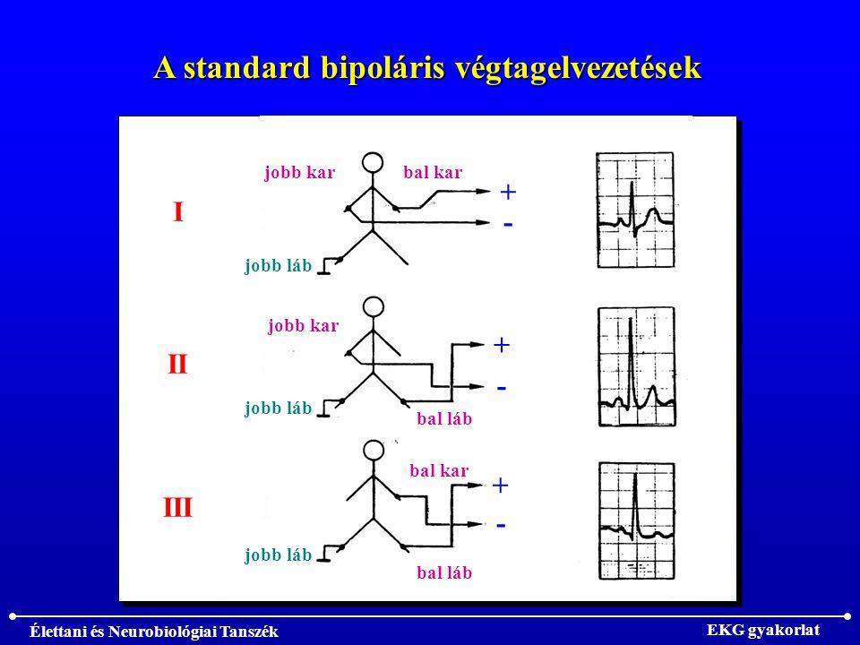 A standard bipoláris végtagelvezetések