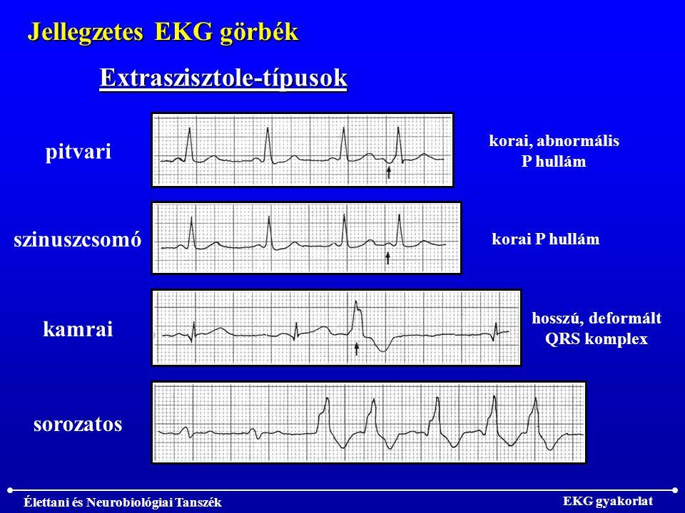 Jellegzetes EKG görbék Extraszisztole-típusok