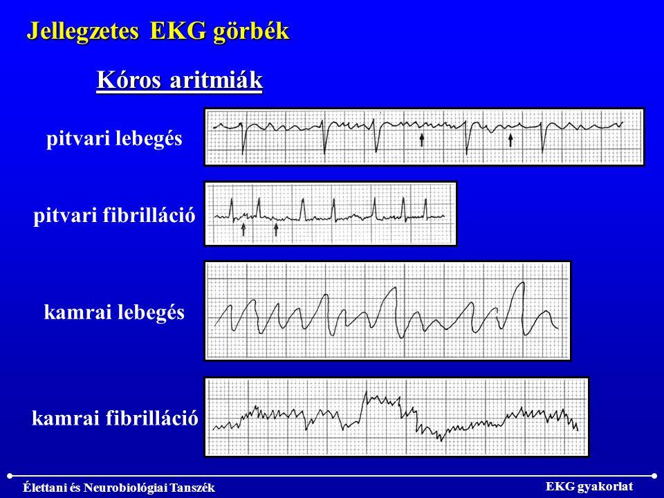 Jellegzetes EKG görbék