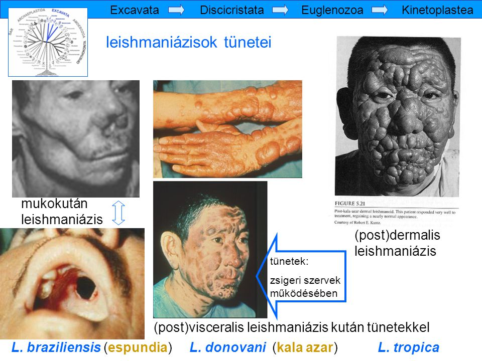 leishmaniázisok tünetei