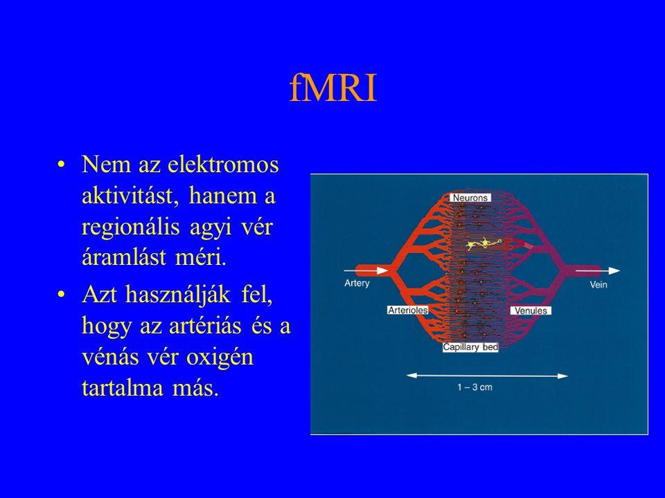 fMRI Nem az elektromos aktivitást, hanem a regionális agyi vér áramlást méri.