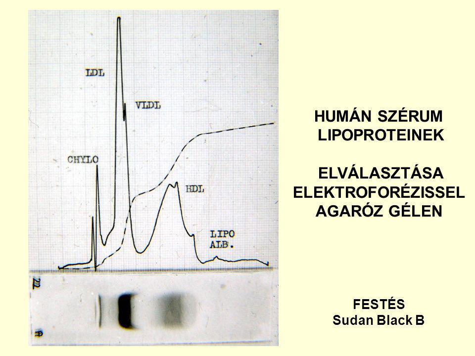HUMÁN SZÉRUM LIPOPROTEINEK ELVÁLASZTÁSA ELEKTROFORÉZISSEL AGARÓZ GÉLEN