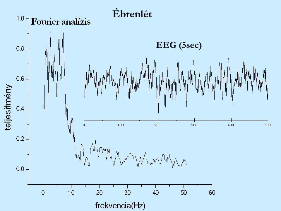 Ébrenlét EEG (5sec)