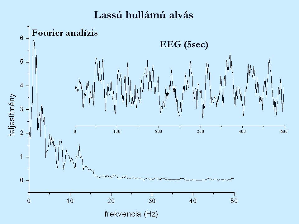 Lassú hullámú alvás EEG (5sec)