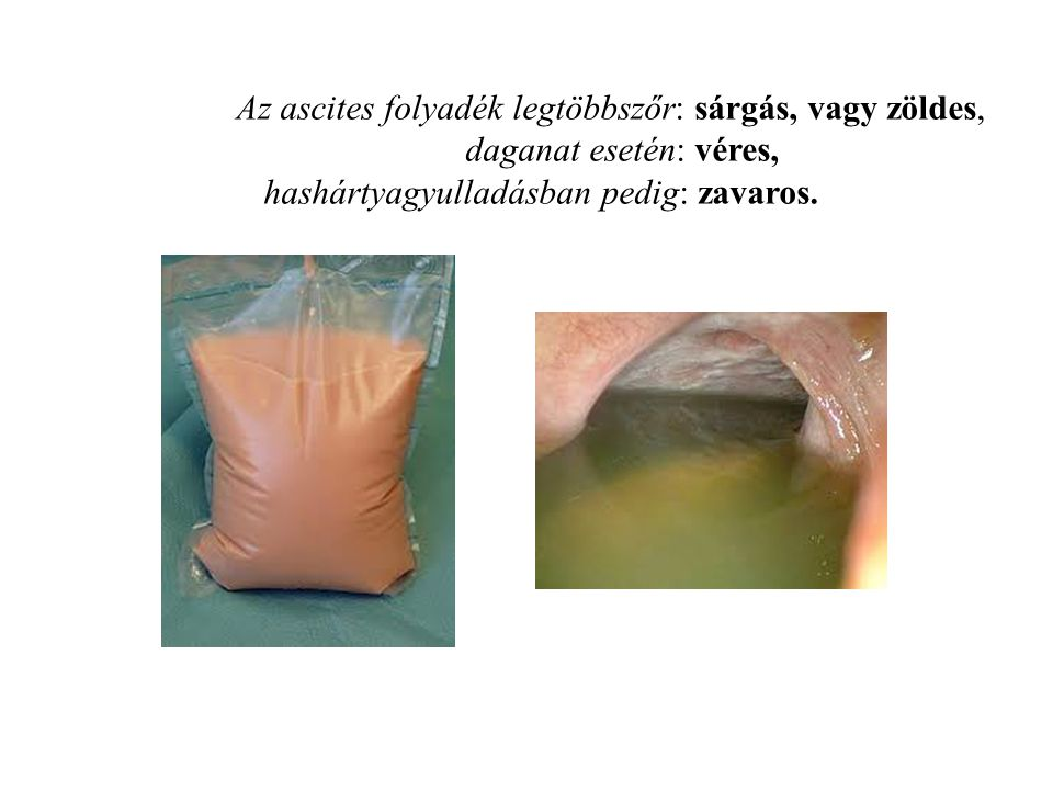 Az ascites folyadék legtöbbszőr: sárgás, vagy zöldes,