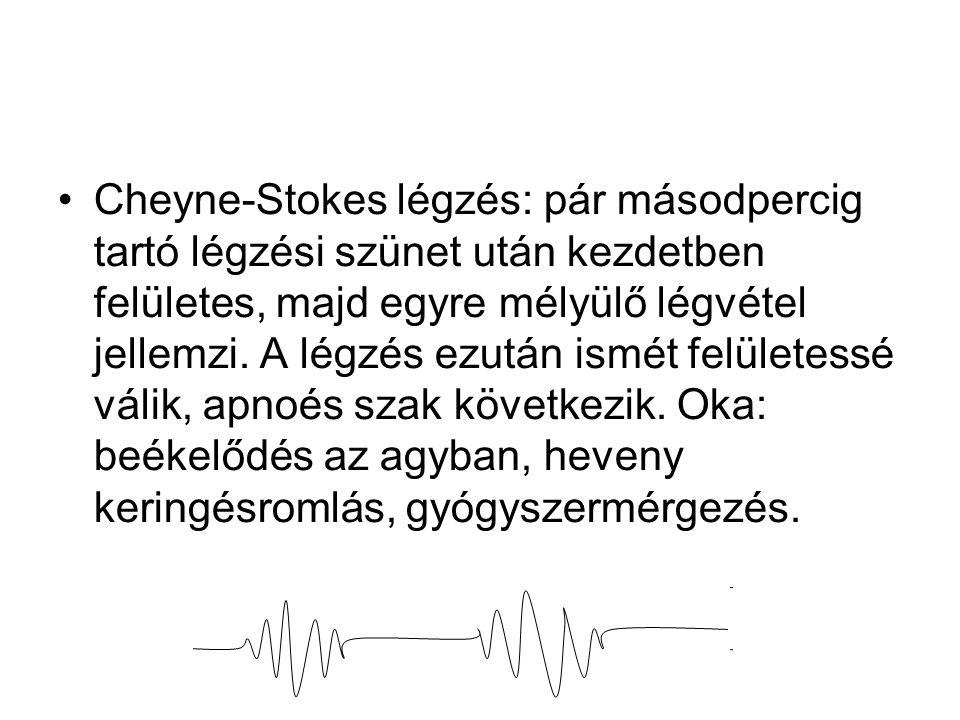 Cheyne-Stokes légzés: pár másodpercig tartó légzési szünet után kezdetben felületes, majd egyre mélyülő légvétel jellemzi.
