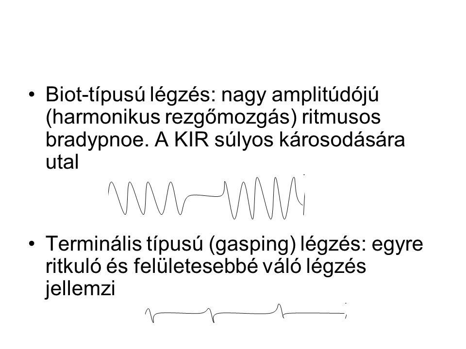 Biot-típusú légzés: nagy amplitúdójú (harmonikus rezgőmozgás) ritmusos bradypnoe. A KIR súlyos károsodására utal