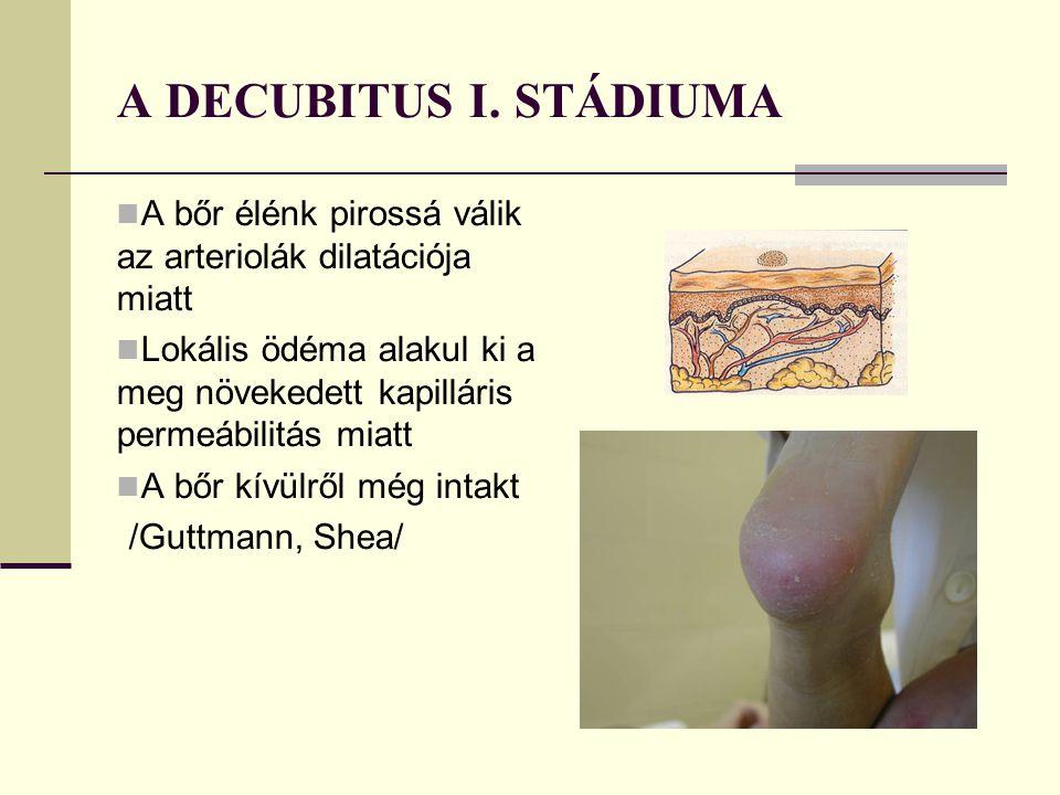A DECUBITUS I. STÁDIUMA A bőr élénk pirossá válik az arteriolák dilatációja miatt.