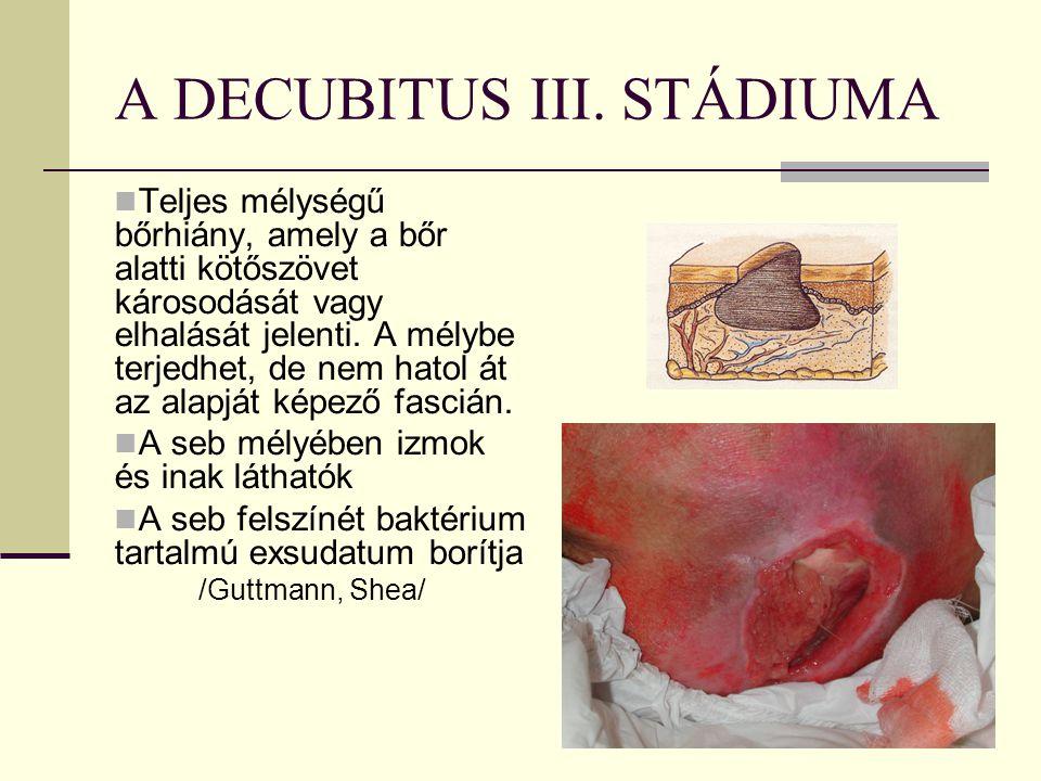 A DECUBITUS III. STÁDIUMA