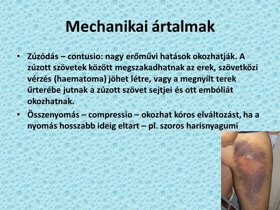 Mechanikai ártalmak
