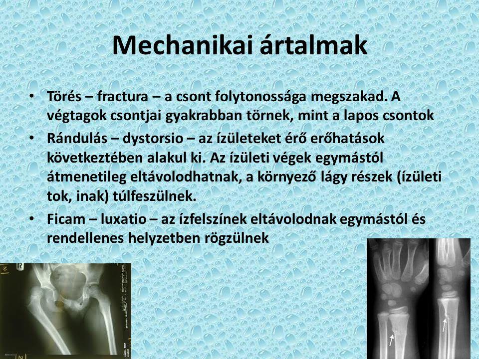 Mechanikai ártalmak Törés – fractura – a csont folytonossága megszakad. A végtagok csontjai gyakrabban törnek, mint a lapos csontok.