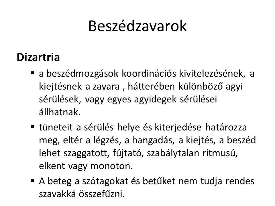 Beszédzavarok Dizartria