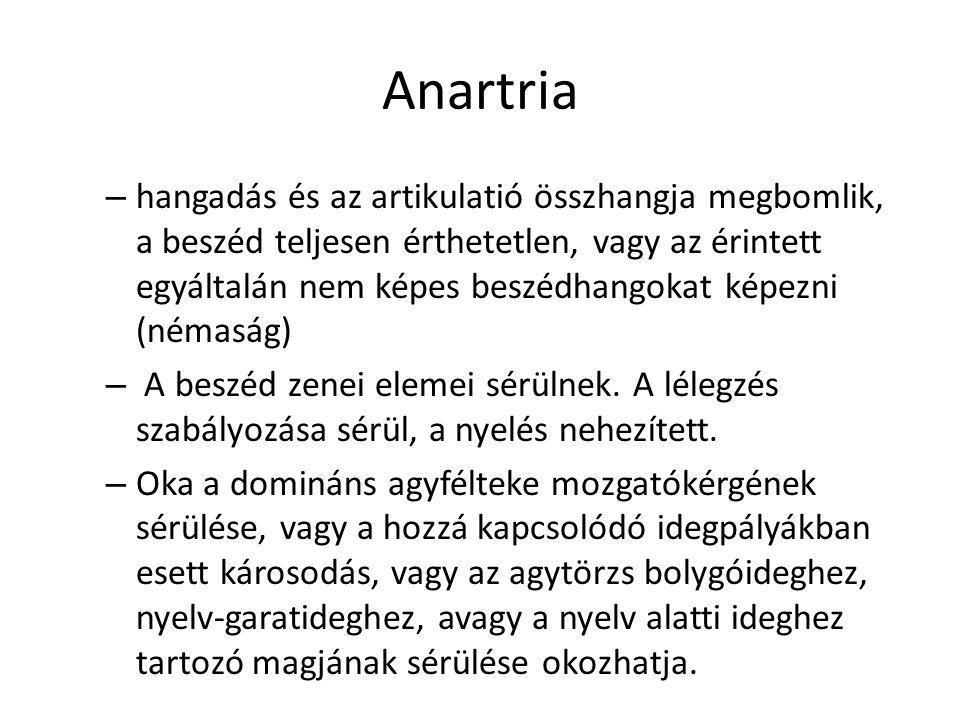 Anartria