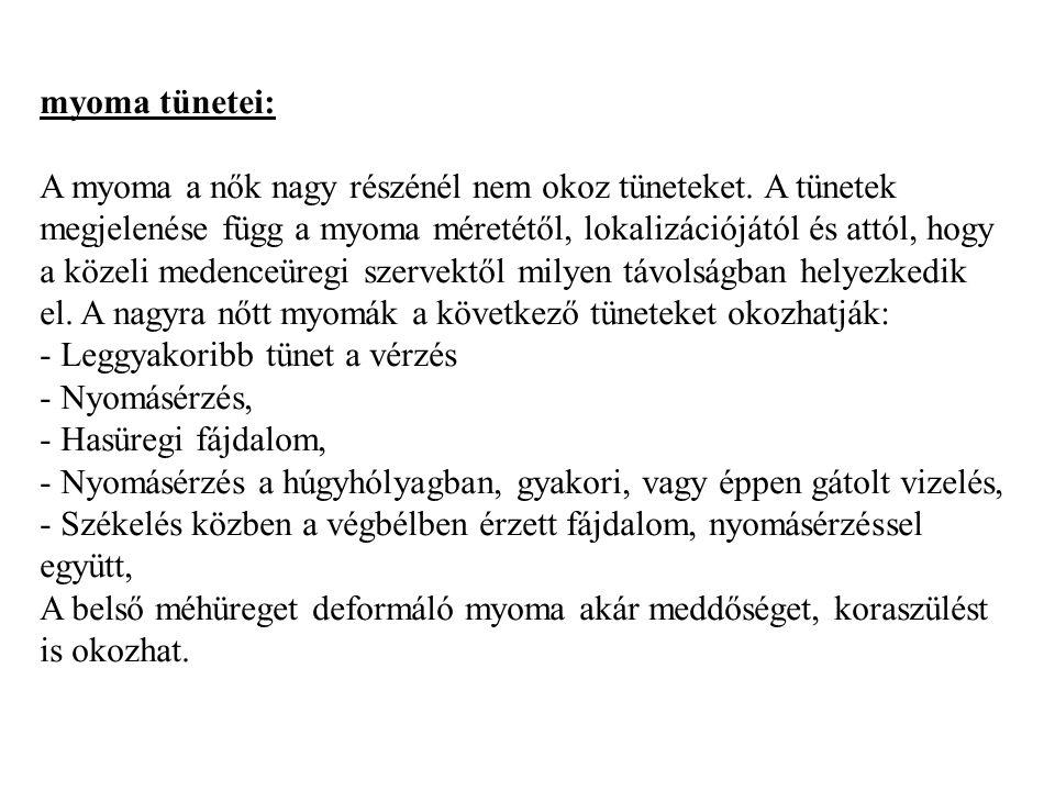 myoma tünetei: