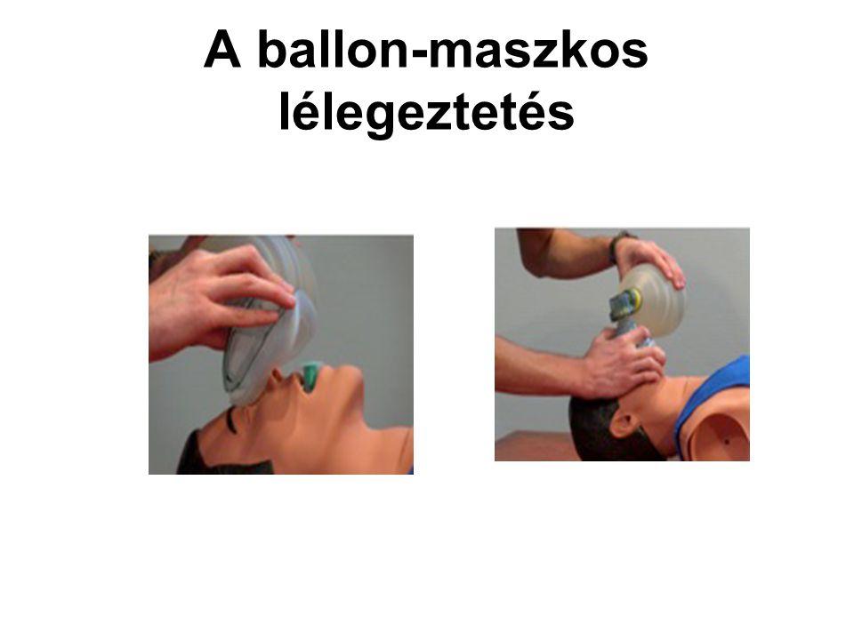 A ballon-maszkos lélegeztetés