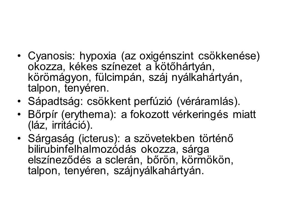 Cyanosis: hypoxia (az oxigénszint csökkenése) okozza, kékes színezet a kötőhártyán, körömágyon, fülcimpán, száj nyálkahártyán, talpon, tenyéren.