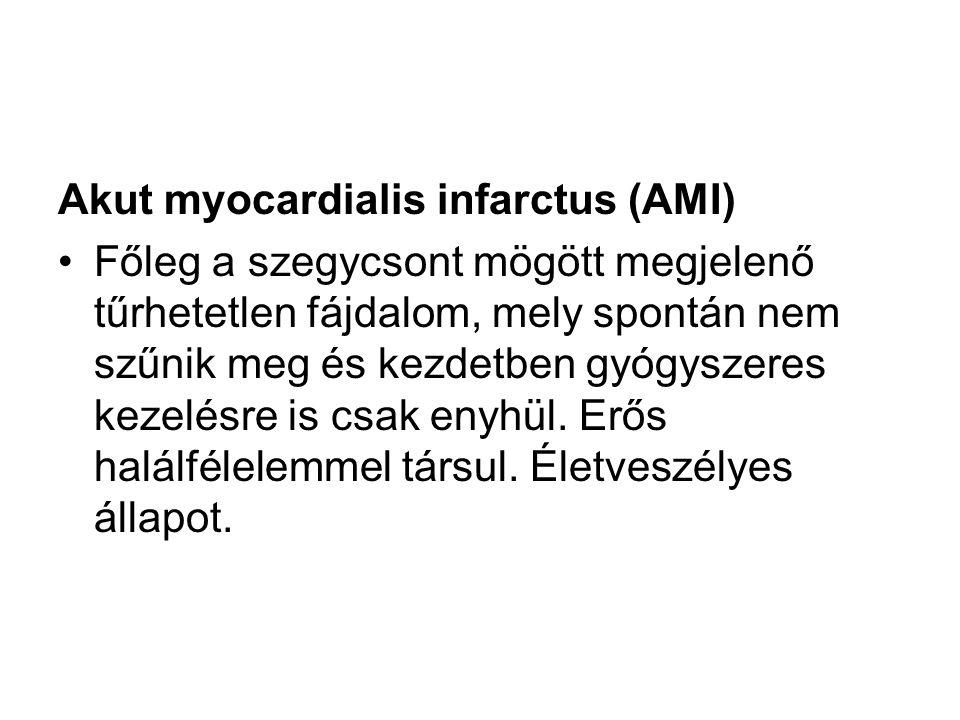 Akut myocardialis infarctus (AMI)