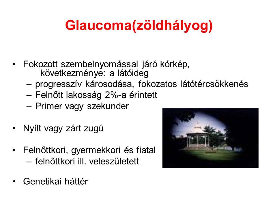 Glaucoma(zöldhályog)