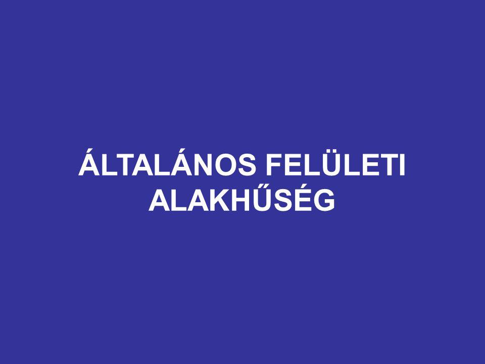 ÁLTALÁNOS FELÜLETI ALAKHŰSÉG