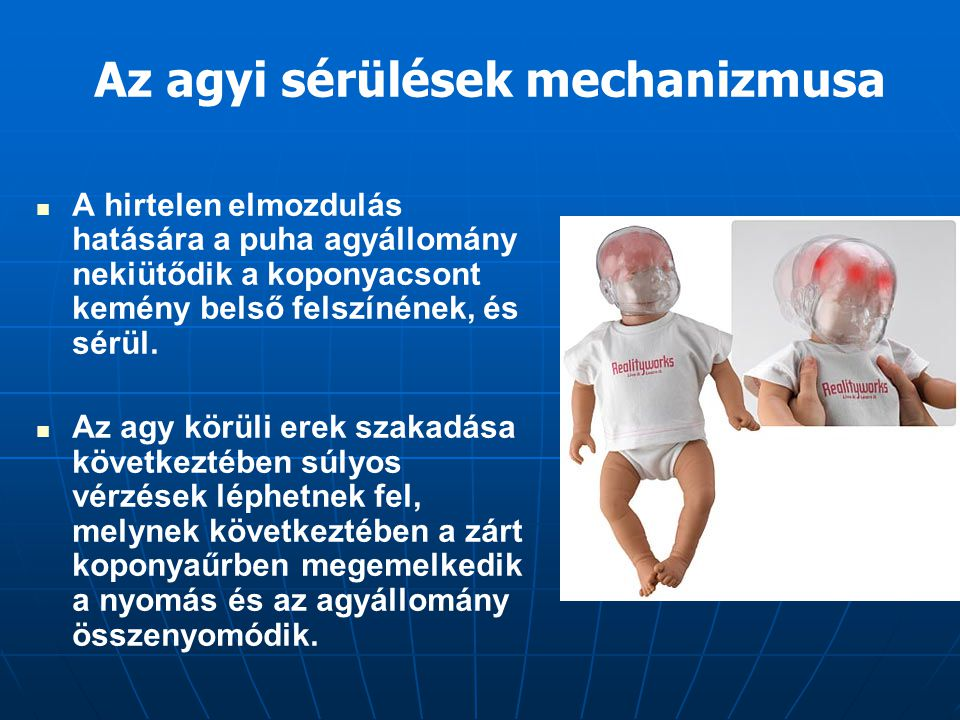 Az agyi sérülések mechanizmusa