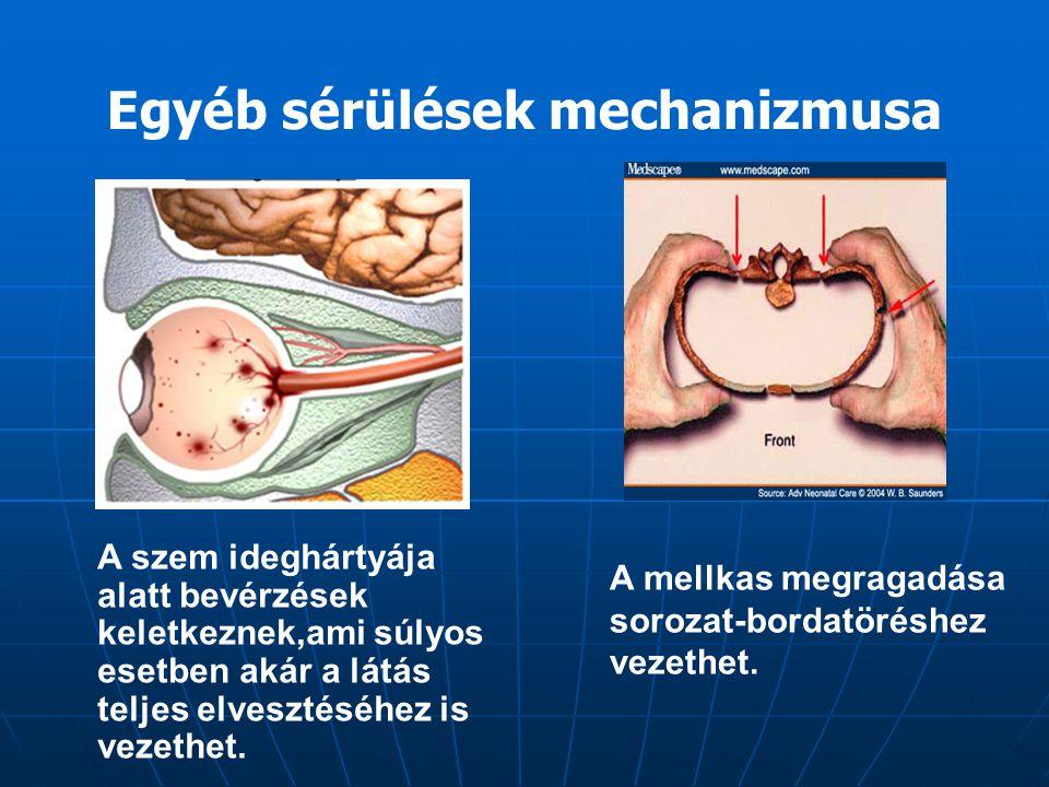 Egyéb sérülések mechanizmusa