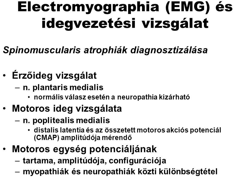 Electromyographia (EMG) és idegvezetési vizsgálat
