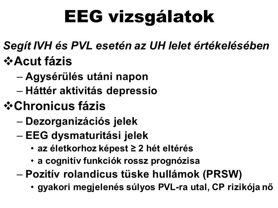 EEG vizsgálatok Acut fázis Chronicus fázis