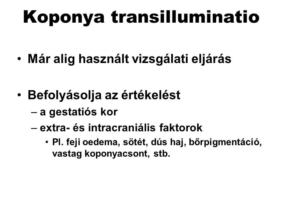 Koponya transilluminatio