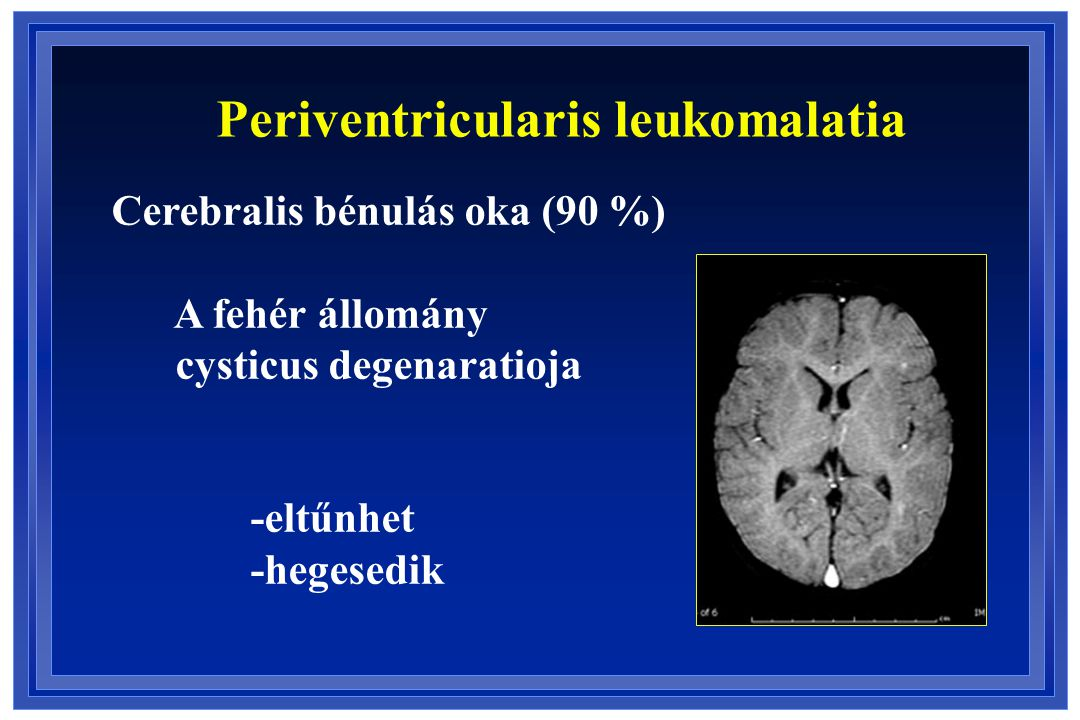 Periventricularis leukomalatia