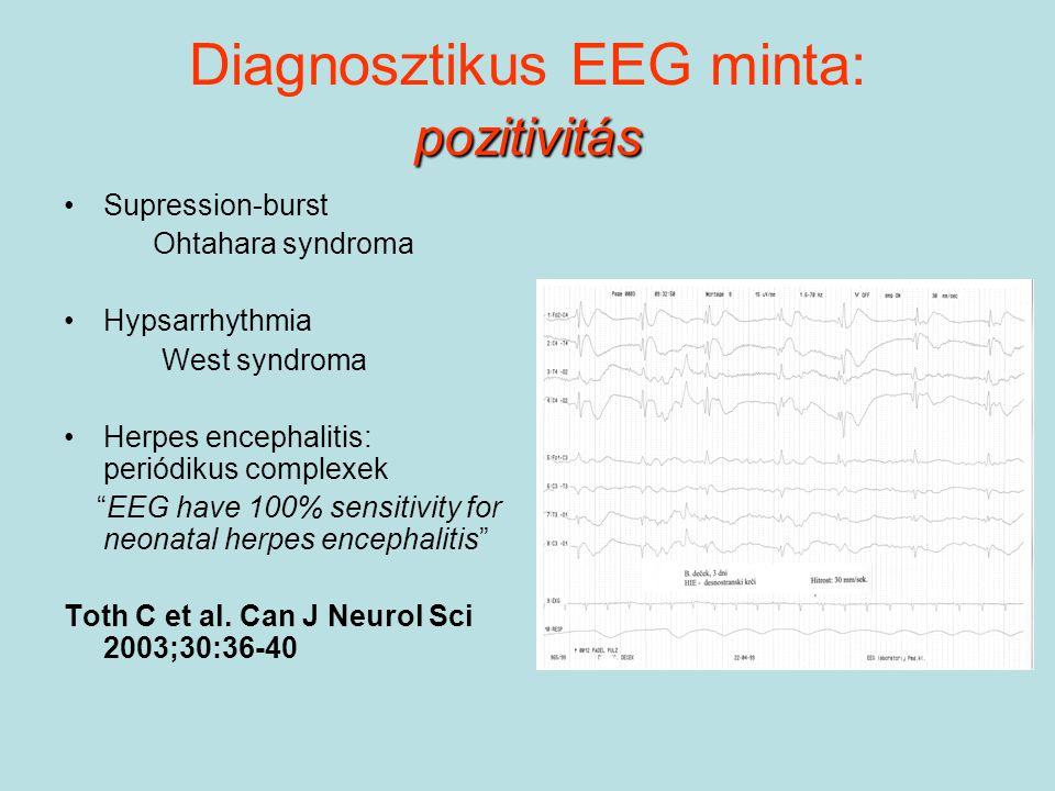 Diagnosztikus EEG minta: pozitivitás