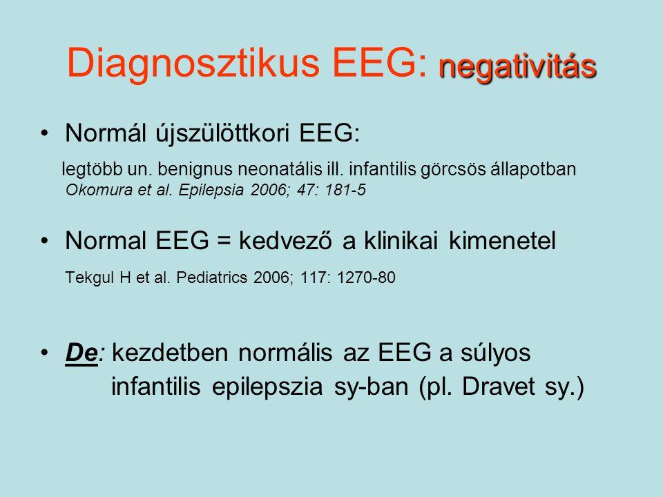 Diagnosztikus EEG: negativitás