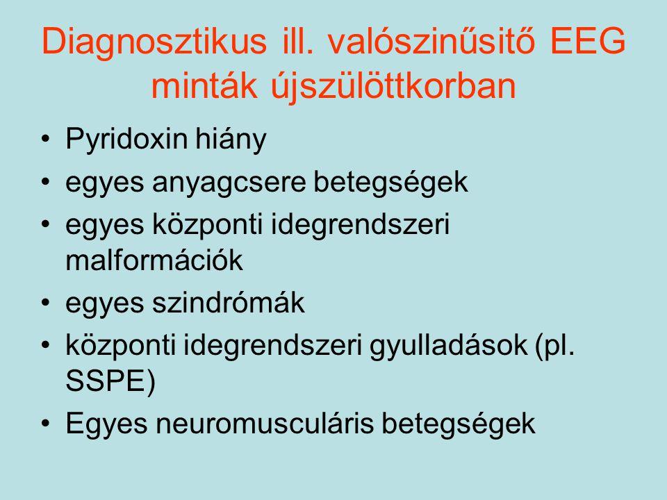 Diagnosztikus ill. valószinűsitő EEG minták újszülöttkorban