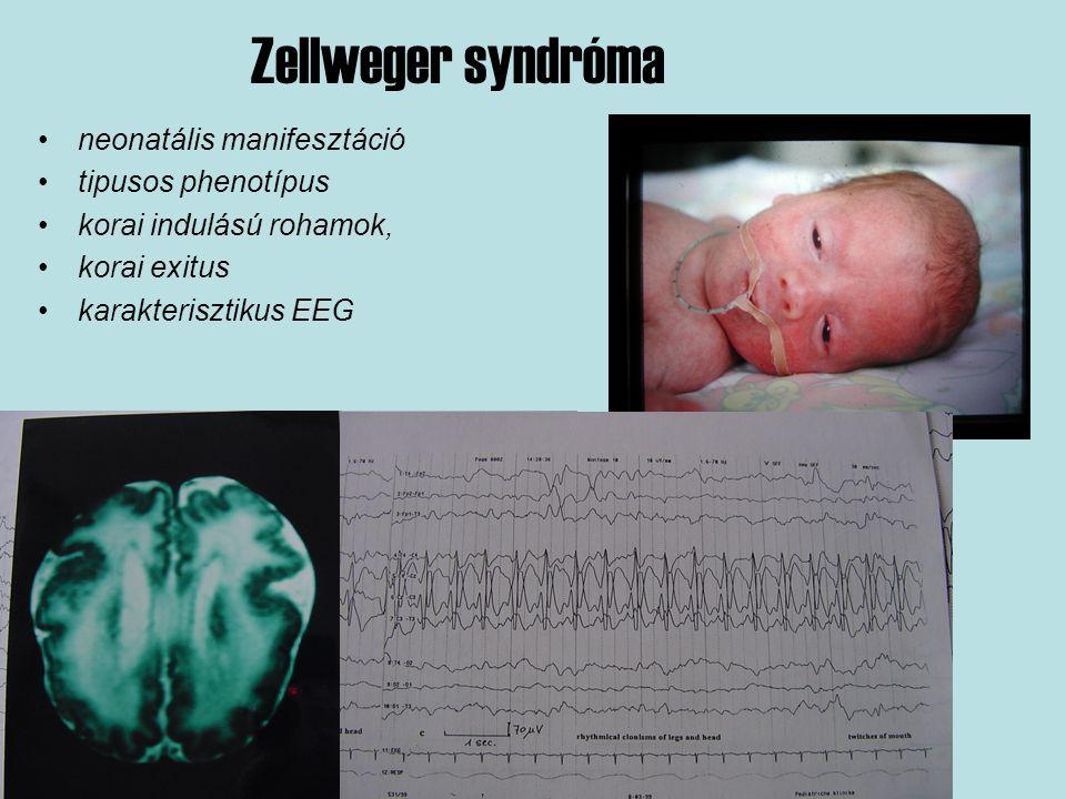Zellweger syndróma neonatális manifesztáció tipusos phenotípus