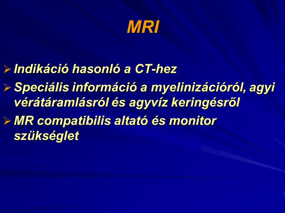 MRI Indikáció hasonló a CT-hez