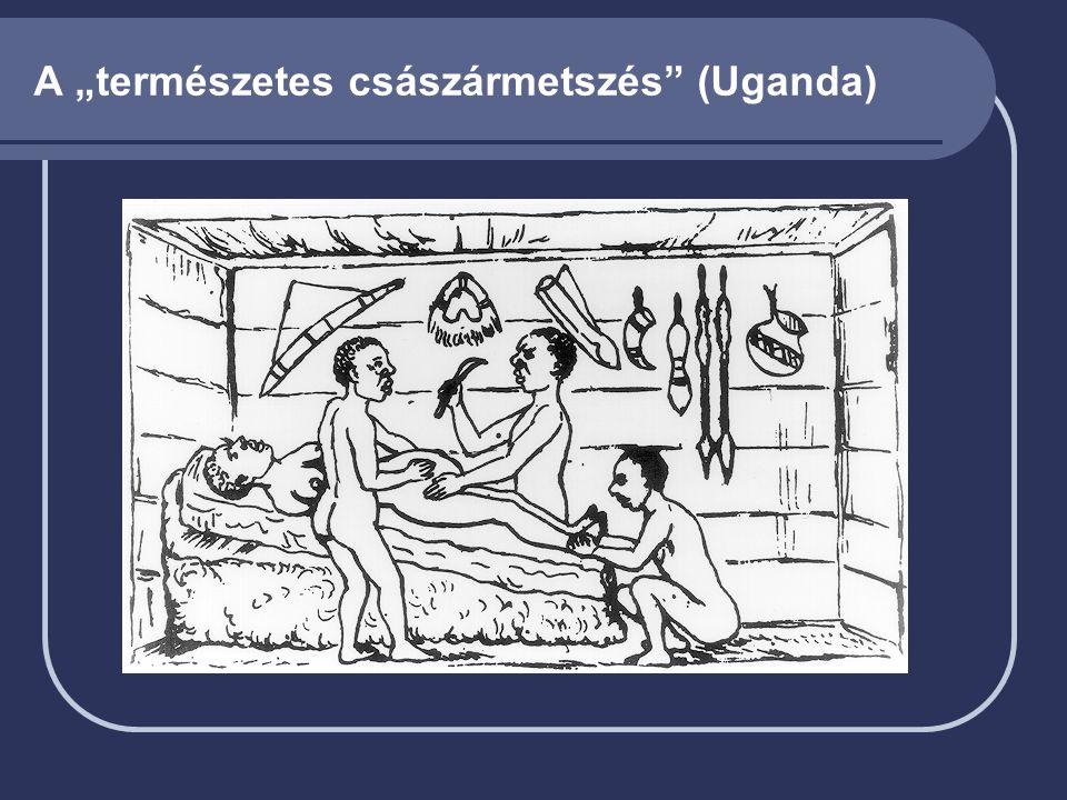 """A """"természetes császármetszés (Uganda)"""