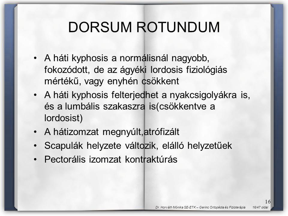 DORSUM ROTUNDUM A háti kyphosis a normálisnál nagyobb, fokozódott, de az ágyéki lordosis fiziológiás mértékű, vagy enyhén csökkent.