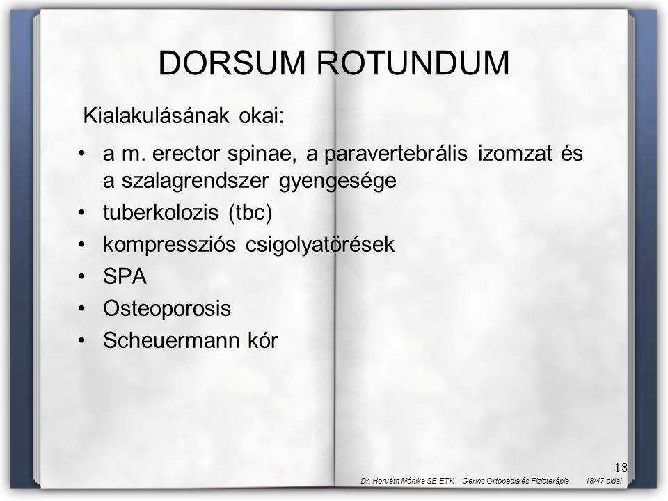 DORSUM ROTUNDUM Kialakulásának okai: