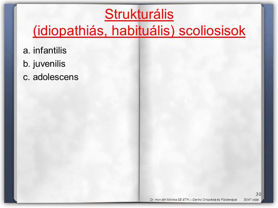 Strukturális (idiopathiás, habituális) scoliosisok