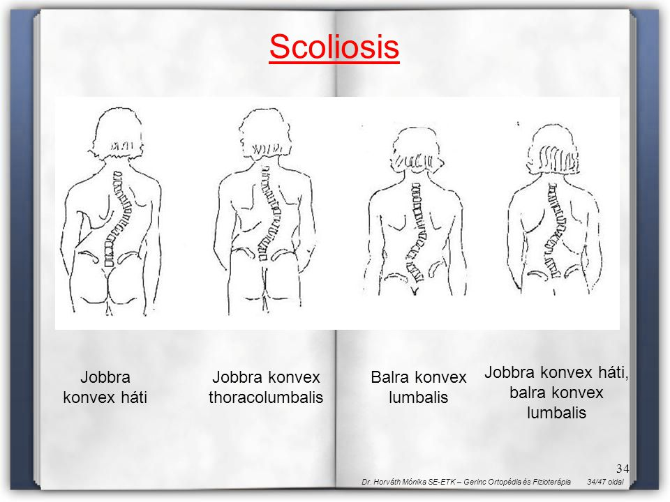 Scoliosis Jobbra konvex háti, balra konvex lumbalis Jobbra konvex háti