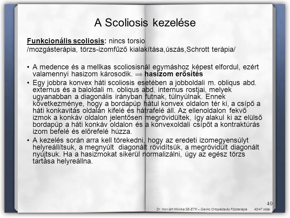 A Scoliosis kezelése Funkcionális scoliosis: nincs torsio
