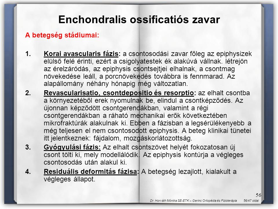 Enchondralis ossificatiós zavar