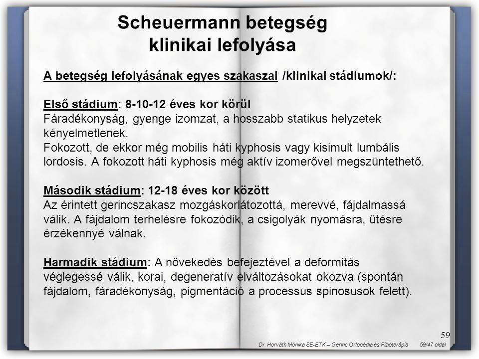Scheuermann betegség klinikai lefolyása
