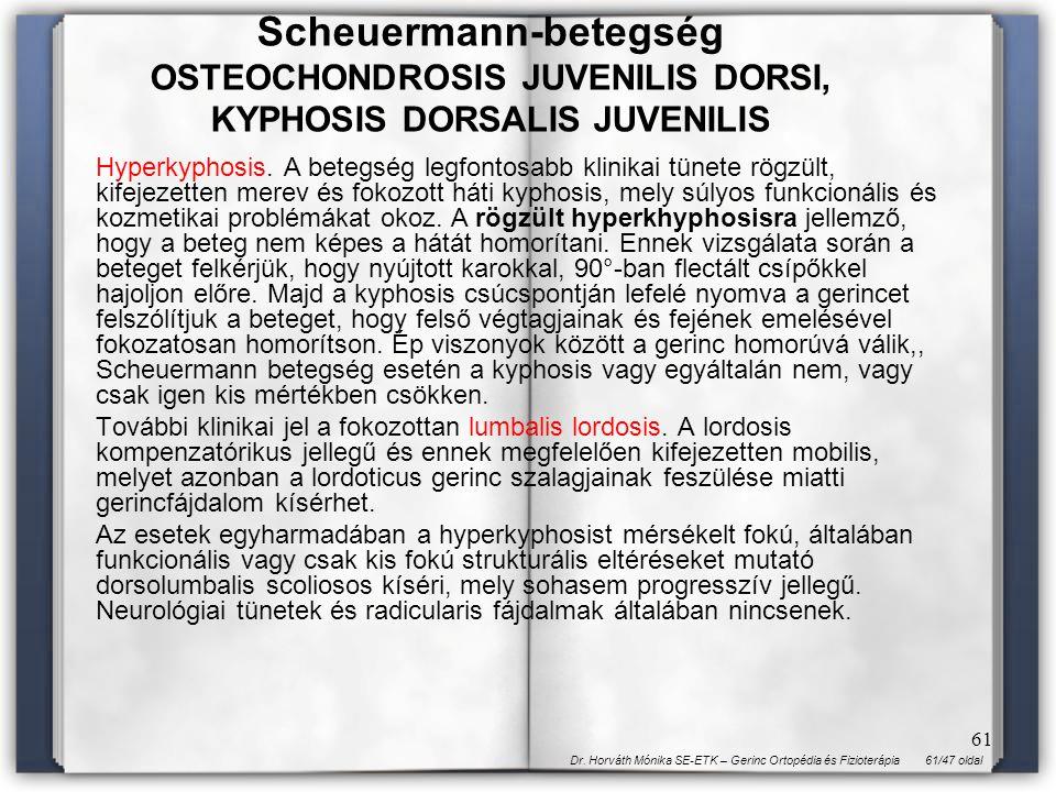 Scheuermann-betegség OSTEOCHONDROSIS JUVENILIS DORSI, KYPHOSIS DORSALIS JUVENILIS