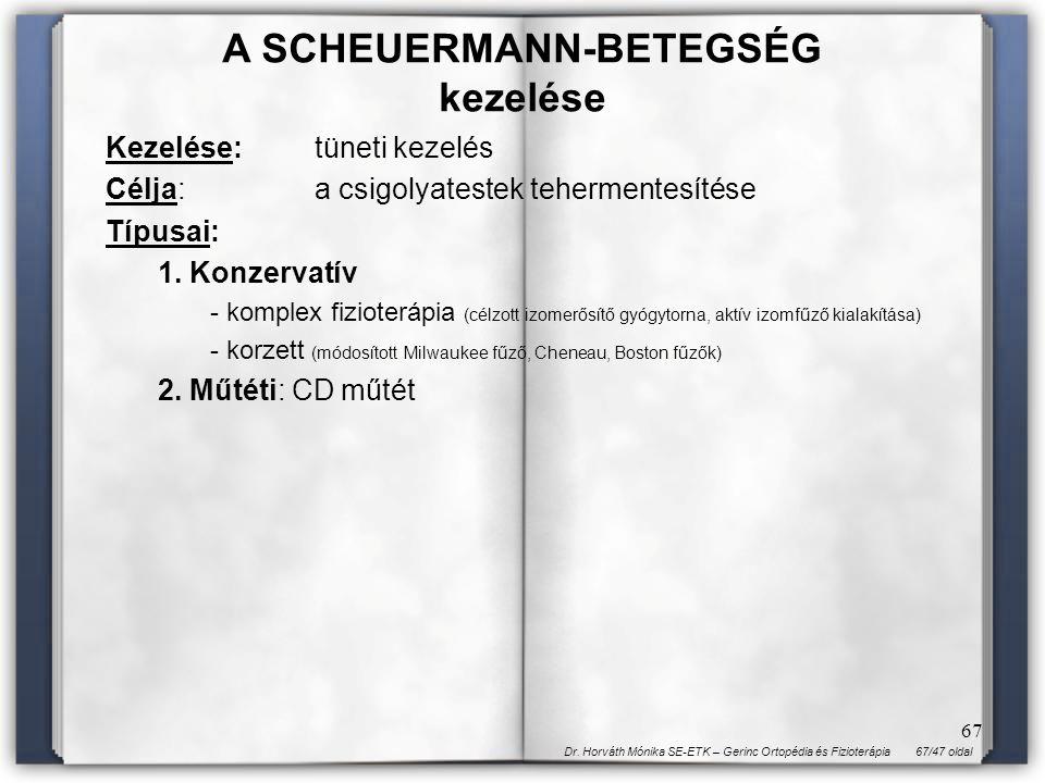 A SCHEUERMANN-BETEGSÉG kezelése