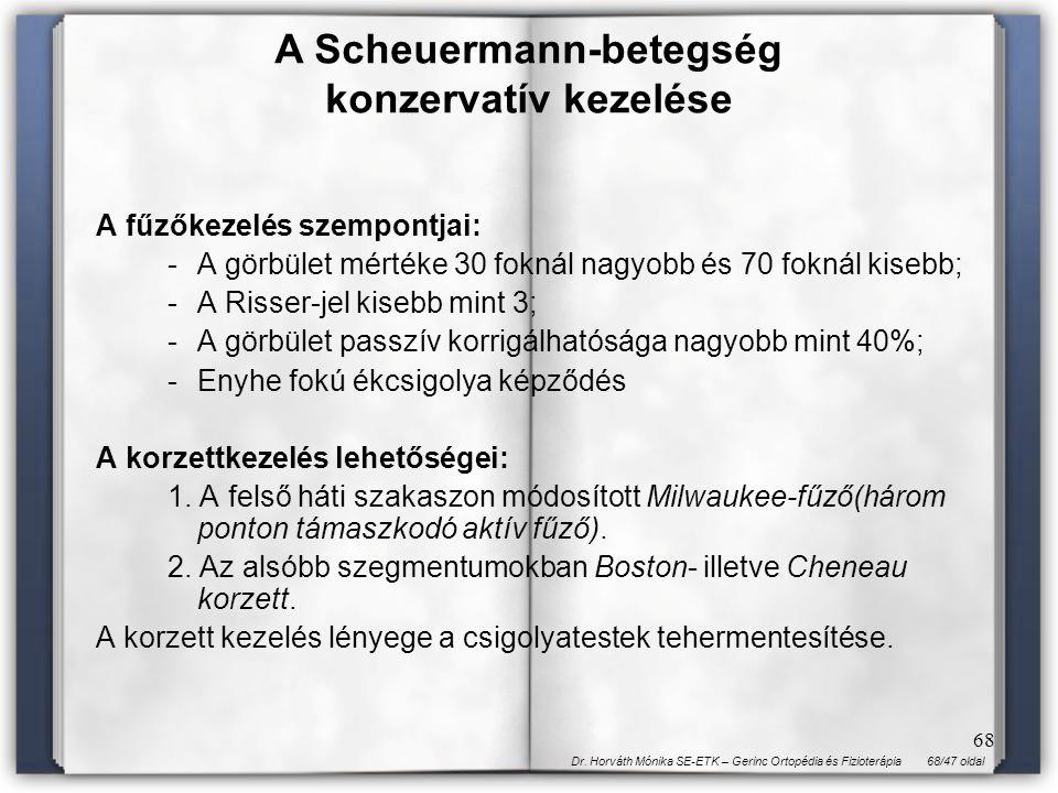 A Scheuermann-betegség konzervatív kezelése